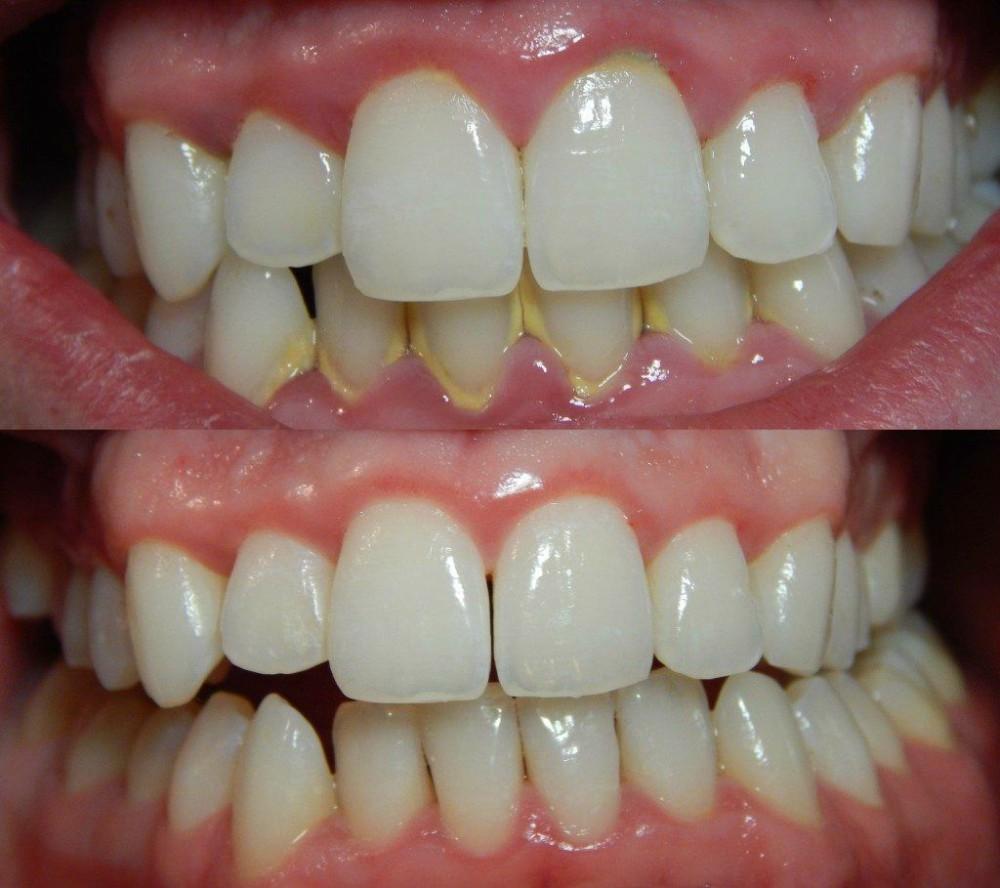 cuanto-cuesta-una-limpieza-dental-profesional