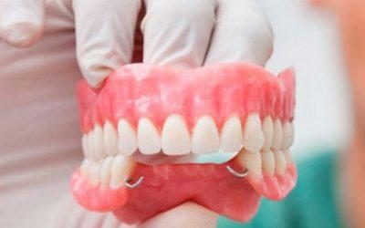 implantes-o-puentes-dentales-que-es-mejor-para-mi